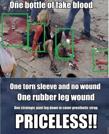 Also note the proportions and 'skin tone' of each leg.  One Real and One Prosthetic