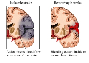 In all of the example I found, the areas of the most common 'effects' of these strokes is NOT Proportional.  Most ischemic strokes are small  and 'affect' only a small portion of the circulatory area. While most hemorrhagic strokes 'effects' a much larger area to expand and exert pressure.